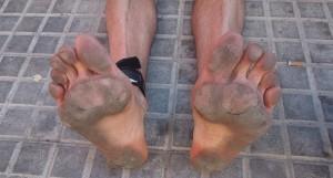 Els peus de Dani Aranda, després de fer la Marató de Barcelona 2013. Foto: Dani Aranda
